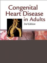 Cover of: Congenital heart disease in adults